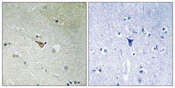 Phospho-ALK (Tyr1096) Antibody (PA5-37471)
