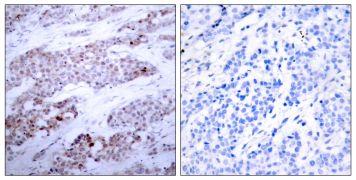 Phospho-ATF4 (Ser245) Antibody (PA5-37482)