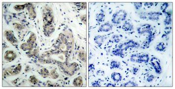 Phospho-BAD (Ser136) Antibody (PA5-37483)