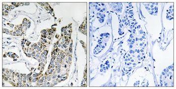 Phospho-BLK (Tyr501) Antibody (PA5-37492)