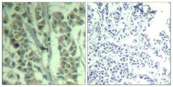 Phospho-c-Cbl (Tyr700) Antibody (PA5-37509)