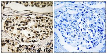 Phospho-Cyclin C (Ser275) Antibody (PA5-37510)