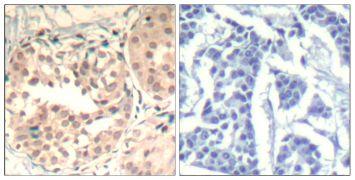 Phospho-CDK6 (Tyr13) Antibody (PA5-37517)