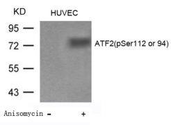 Phospho-ATF2 (Ser94, Ser112) Antibody (PA5-37529)