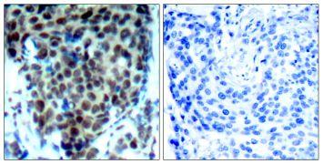 Phospho-p38 MAPK alpha (Thr180) Antibody (PA5-37535)