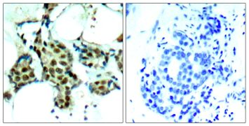 Phospho-p38 MAPK alpha (Tyr182) Antibody (PA5-37536)