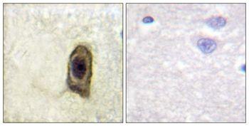 Phospho-CSF1R (Tyr561) Antibody (PA5-37537)