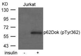 Phospho-DOK1 (Tyr362) Antibody (PA5-37548)