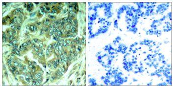 Phospho-DOK1 (Tyr398) Antibody (PA5-37549)