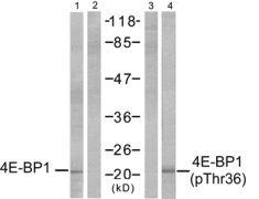Phospho-4E-BP1 (Thr36) Antibody (PA5-37556)