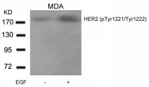 Phospho-ErbB2 (Tyr1221, Tyr1222) Antibody (PA5-37565)