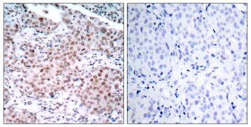 Phospho-Estrogen Receptor alpha (Ser104) Antibody (PA5-37568)