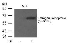Phospho-Estrogen Receptor alpha (Ser106) Antibody (PA5-37569)