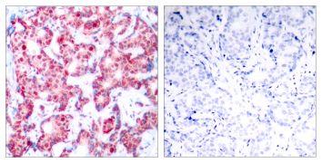 Phospho-GATA1 (Ser142) Antibody (PA5-37581)