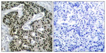 Phospho-HSF1 (Ser303) Antibody (PA5-37598)