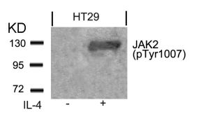Phospho-JAK2 (Tyr1007) Antibody (PA5-37618)