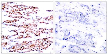 Phospho-JunB (Ser79) Antibody (PA5-37621)