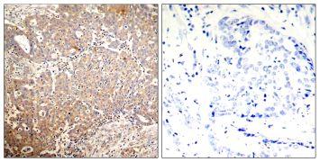 Phospho-Cytokeratin 18 (Ser33) Antibody (PA5-37624)