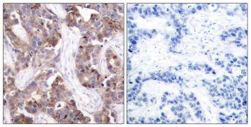 Phospho-STMN1 (Ser25) Antibody (PA5-37625)