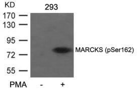 Phospho-MARCKS (Ser162) Antibody (PA5-37632)