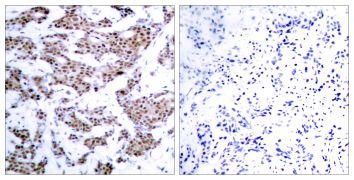 Phospho-MEF2A (Thr312) Antibody (PA5-37642)