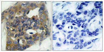 Phospho-ASK1 (Ser966) Antibody (PA5-37647)