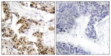 Phospho-NFkB p50 (Ser893) Antibody (PA5-37659)