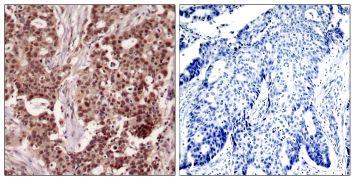 Phospho-NFkB p50 (Ser927) Antibody (PA5-37661)