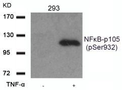 Phospho-NFkB p50 (Ser932) Antibody (PA5-37662)