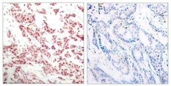 Phospho-NFkB p52 (Ser866) Antibody (PA5-37664)