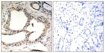 Phospho-IkB epsilon (Ser22) Antibody (PA5-37665)