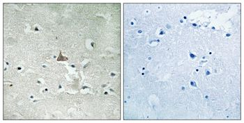 Phospho-TrkB (Tyr706, Tyr707) Antibody (PA5-37673)