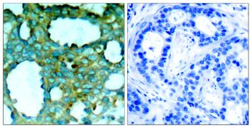 Phospho-PAK1 (Thr212) Antibody (PA5-37677)