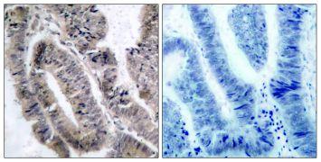 Phospho-AMPK alpha-1 (Ser487) Antibody (PA5-37690)