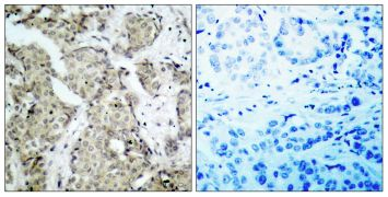 Phospho-MEK6 (Ser207) Antibody (PA5-37702)