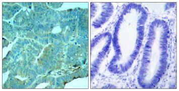 Phospho-PKR (Thr446) Antibody (PA5-37704)