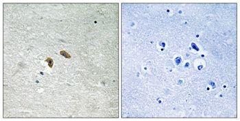 Phospho-c-Raf (Thr269) Antibody (PA5-37712)
