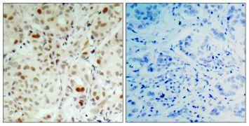 Phospho-Rb (Ser807) Antibody (PA5-37716)
