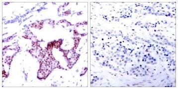 Phospho-NFkB p65 (Ser276) Antibody (PA5-37718)