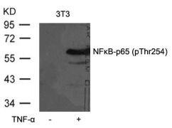 Phospho-NFkB p65 (Thr254) Antibody (PA5-37723)