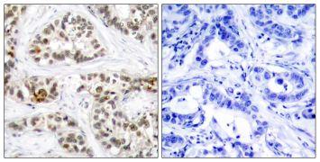 Phospho-RelB (Ser573) Antibody (PA5-37726)
