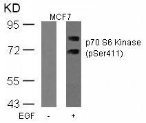 Phospho-p70 S6 Kinase (Ser411) Antibody (PA5-37731)