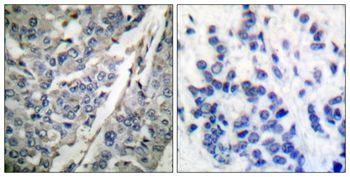 Phospho-Synaptotagmin 1 (Thr202) Antibody (PA5-37751)