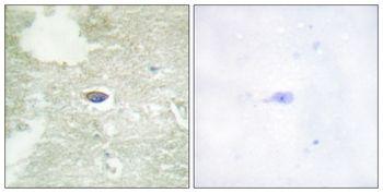 Phospho-TGFBR2 (Ser225, Ser250) Antibody (PA5-37755)