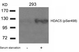 Phospho-HDAC5 (Ser498) Antibody (PA5-37779)