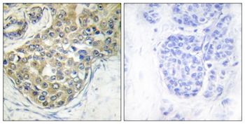 Phospho-ACK1 (Tyr284) Antibody (PA5-37782)