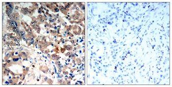 Phospho-AMPK alpha-1,2 (Thr172) Antibody (PA5-37821)