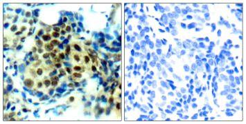 Phospho-ERK1/ERK2 (Thr202) Antibody (PA5-37824)