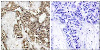 Phospho-ERK1/ERK2 (Tyr204) Antibody (PA5-37825)
