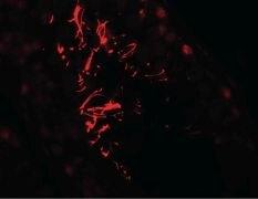 AKAP4 Antibody (PA5-38015)